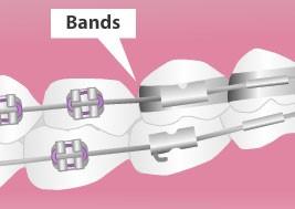 حلقه فلزی یا بند ارتودنسی