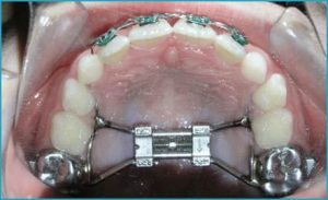 انحراف دندانها در اثر فشردگی و کمبود فضا