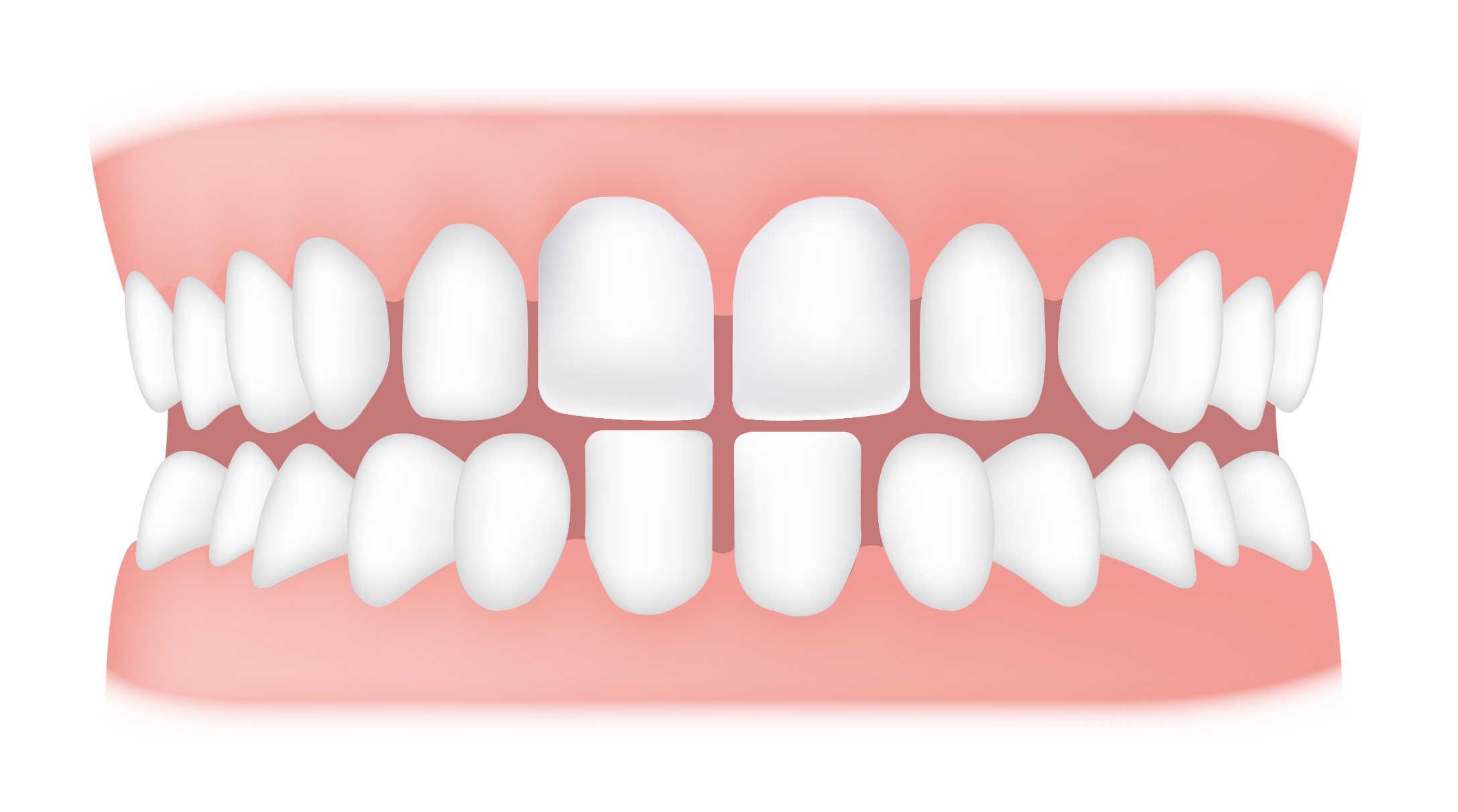 شکل- فاصله بین دندانها به علت بزرگ بودن اندازه فک در مقایسه با اندازه دندانها
