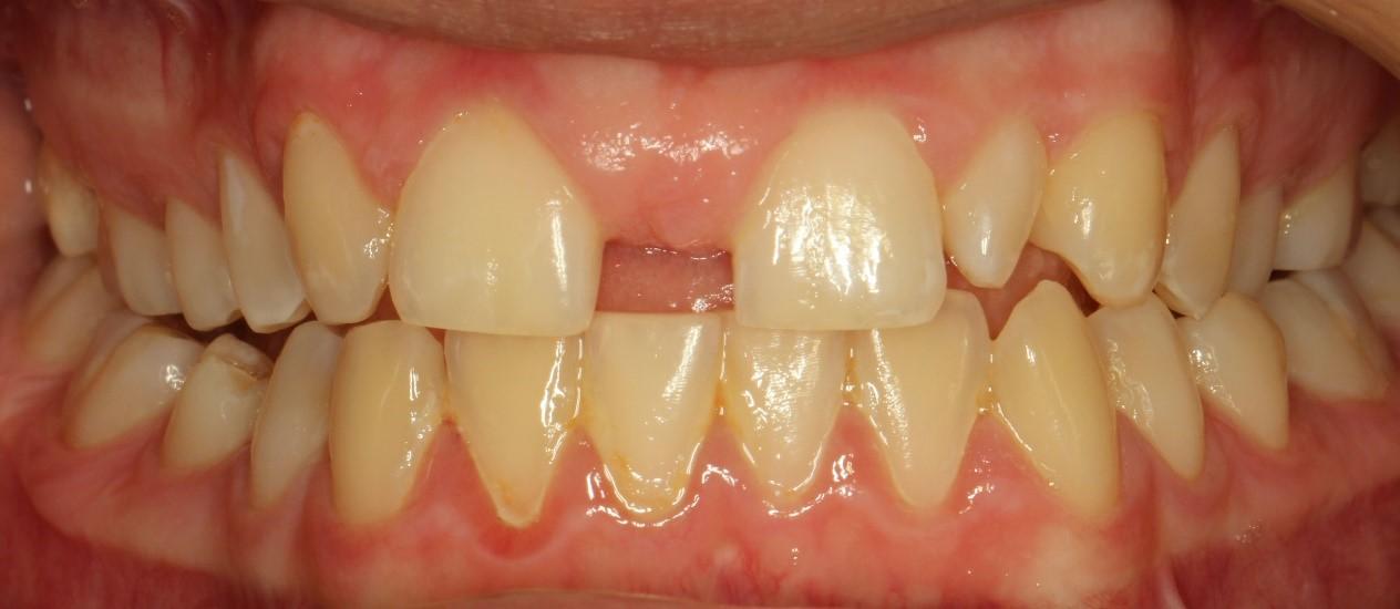 شکل- فاصله بین دندانها به علت عدم وجود مادرزادی دندان جلویی کناری فک بالا