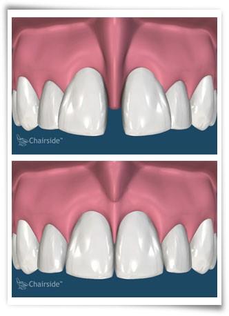 شکل- در تصویر بالا بزرگی فرنوم لبی باعث فاصله بین دندانها شده که در تصویر پایین با برداشتن فرنوم اصلاح شده است.