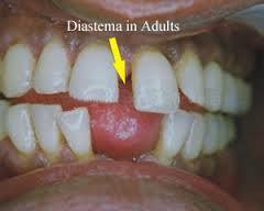 شکل- فاصله بین دندانهای جلویی به علت عادت فشار دادن زبان به دندانهای جلو