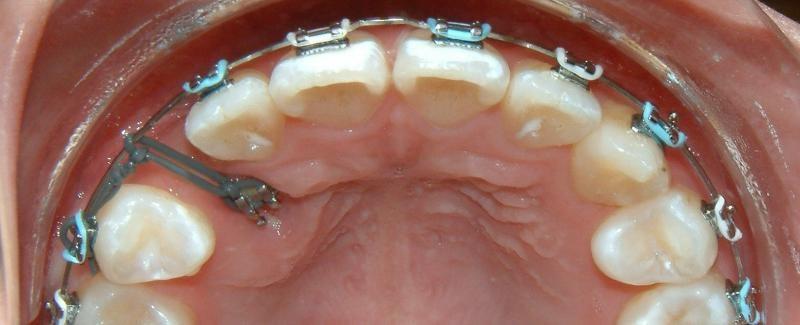 روشهای درمان نهفتگی دندان نیش