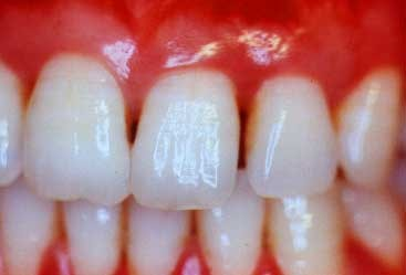 شکل- فاصله بین دندانها به علت بیماری لثه
