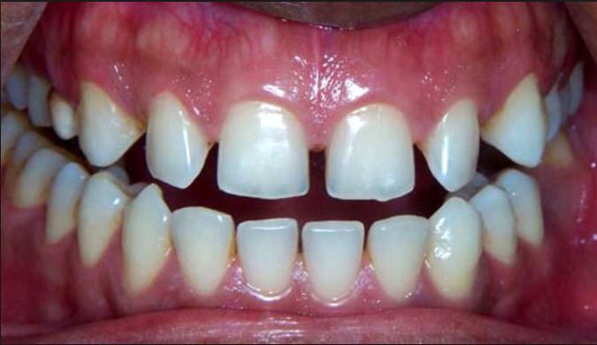 دلایل ایجاد فاصله بین دندانها