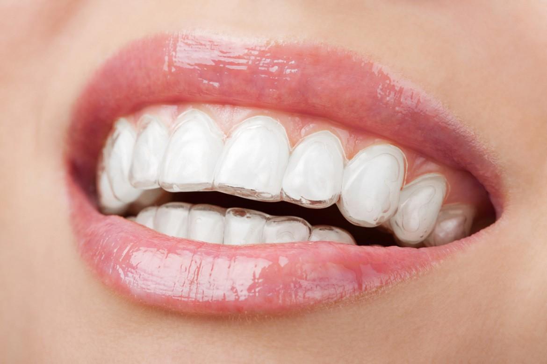 بهداشت در براکت های شفاف، سرامیکی، پشت دندانی