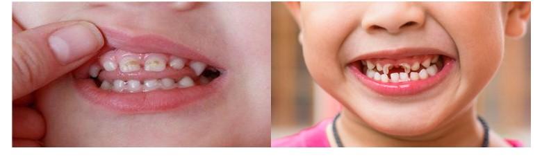 از دست رفتن زودهنگام دندانهای شیری