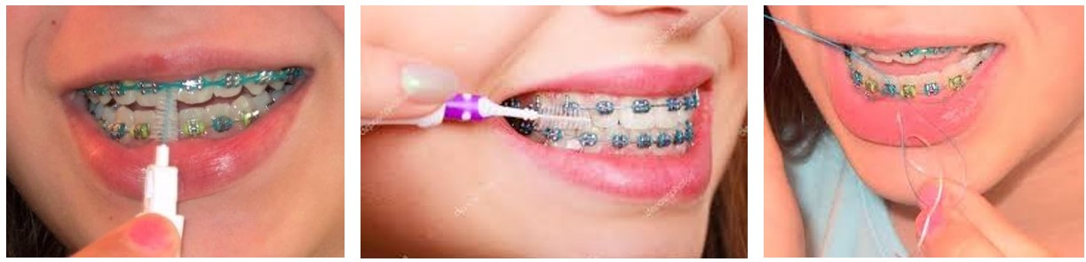 لکه سفید روی دندان
