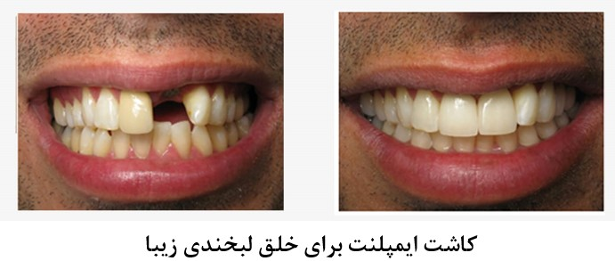 اصلاح طرح لبخند با کمک ارتودنسی