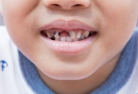 سیاهی دندان کودک با قطره آهن