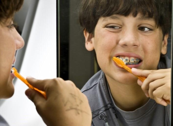 چگونه کودک را برای درمان ارتودنسی آماده کنیم؟