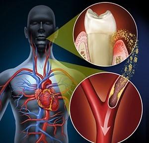 دیابت و درمان ارتودنسی