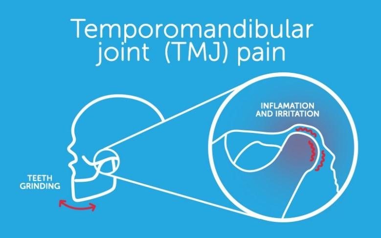 اختلال مفصل فکی گیجگاهی TMJ