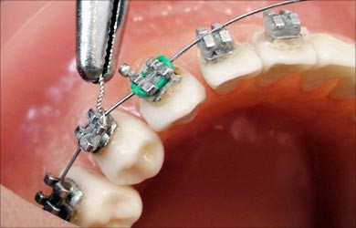 براکت ها چگونه روی دندان ها عمل میکنند؟