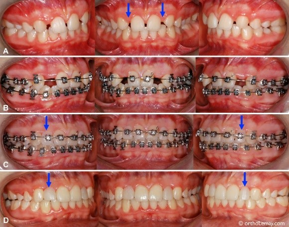 فقدان مادرزادی یک یا چند دندان