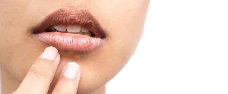 خشکی دهان و درمان ارتودنسی