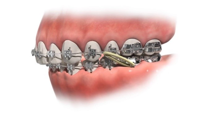 اوربایت و درمان با ارتودنسی