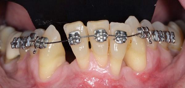 ارتودنسی با دندان عصب کشی شده